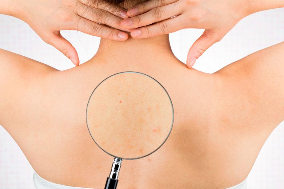 acne-espalda-granos-espinillas-bacne-causas-tratamiento-eliminar-dermatologia-dermatologo-dr-lopez-gil-teknon-barcelona