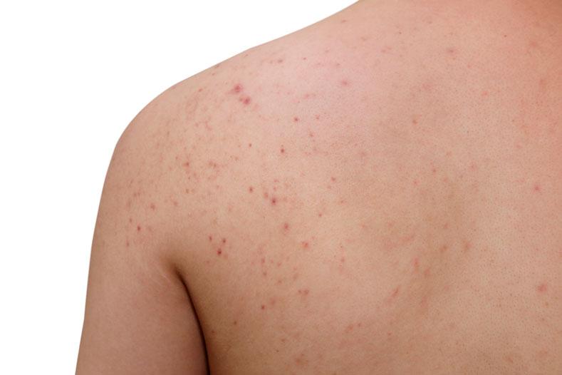 acne-espalda-hombres-tratamiento-espinillas-bacne-granos-dermatologia-dermatologo-clinica-dr-lopez-gil-barcelona