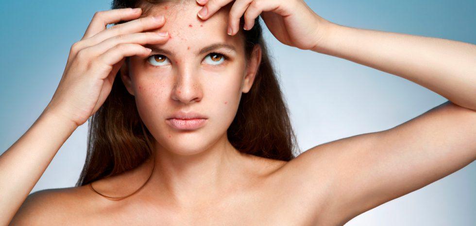 acne-marcas-cicatrices-tratamiento-dermatologo-barcelona-clinica-dr-lopez-gil-consulta-acne-hormonal