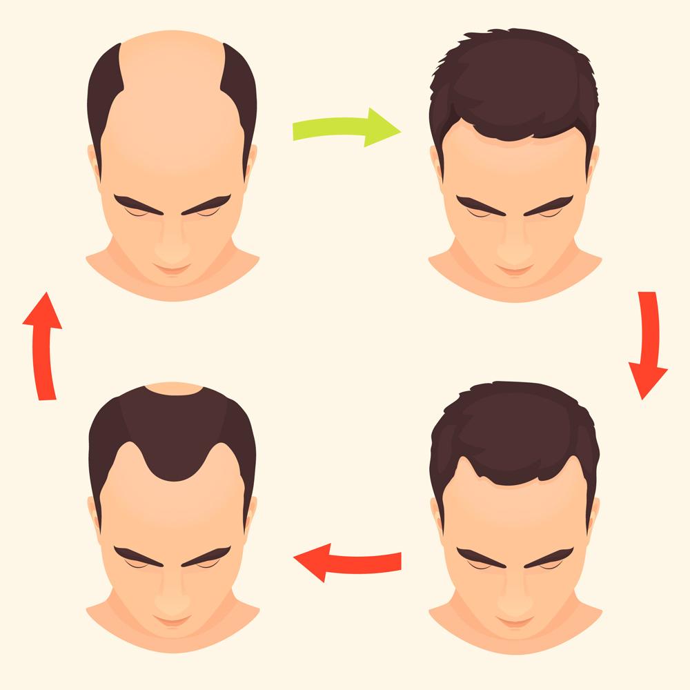 alopecia-androgenetica-masculina-escala-hamilton-evolucion-cabello-caida-dermatologo-dermatologo-dr-lopez-gil-teknon-barcelona