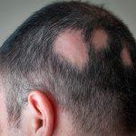 Alopecia areata, combátela con los mejores tratamientos. El Dr. López Gil te los explica: