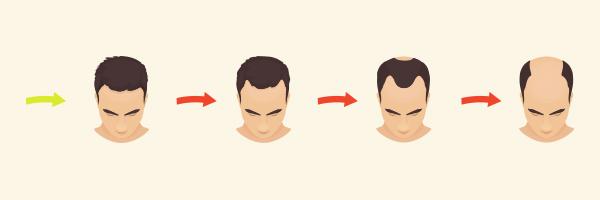 alopecia-androgenetica-masculina-evolucion-caida-pelo-cabell-caiguda-dermatologia-dermatologo-drlopezgil_dermandtek-teknon-barcelona