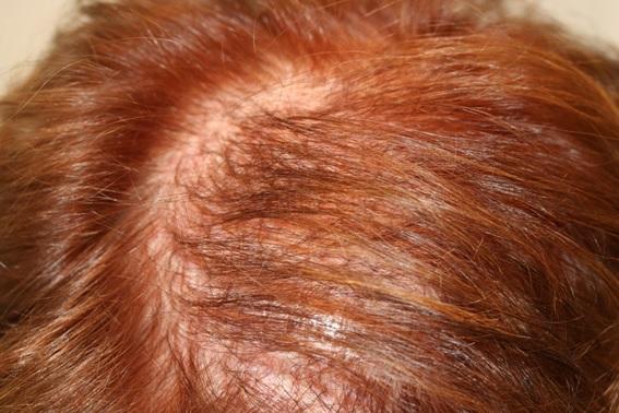 antes-tratamiento-mujer-alopecia-calvicie-caida-del-pelo-tratamiento-dr-lopez-gil-dermatologo-clinica-barcelona-teknon-