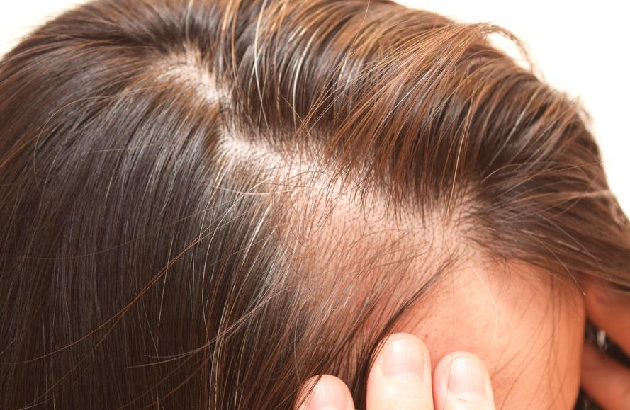 aida-pelo-alopecia-androgenetica-mujeres-femenina-tratamiento-dermatologia-dermatologo-dr-lopez-gil-teknon-barcelona