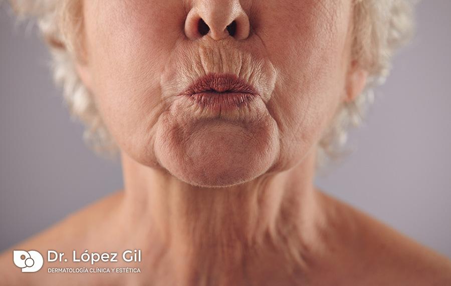eliminar-arrugas-codigo-de-barras-arrugas-edad-labios-arrugados-botox-acido-hialuronico-tractaments-estetica-dermatologia-dermatolego-dr-lopez-gil-consulta-barcelona