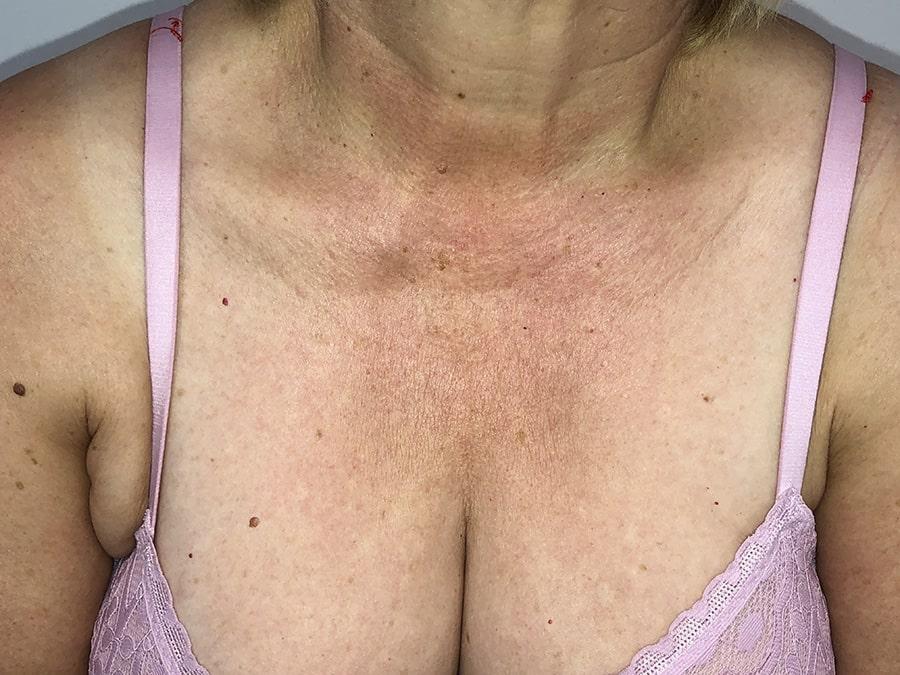 cuperosis-rosacea-escote-eritema-tratamiento-laser-nordlys-ellipse-mejor-clinica-dermatologica-barcelona-antes