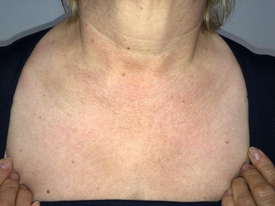 cuperosis-rosacea-escote-eritema-tratamiento-laser-nordlys-ellipse-mejor-clinica-dermatologica-barcelona-despues