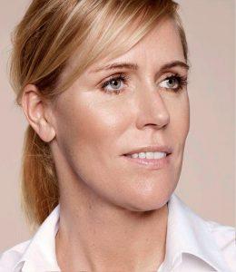 despues-infiltraciones-acido-hialuronico-dermatologo-doctor-lopez-gil-clinica-teknon-barcelona