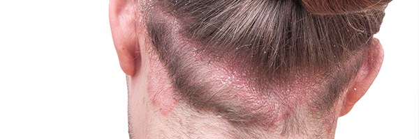 drlopezgil-dermatologia-barcelona-600x200-psoriasis-cuero-cabelludo-caiguda-cabell