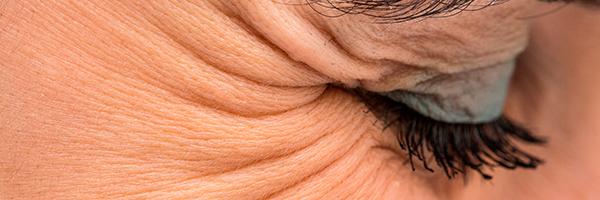 tratamiento-patas-gallo-arrugas-dermatologo-cirujano-barcelona-doctor-lopez-gil