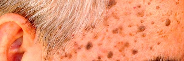drlopezgil_dermatologia_barcelona_600x200_verrugas