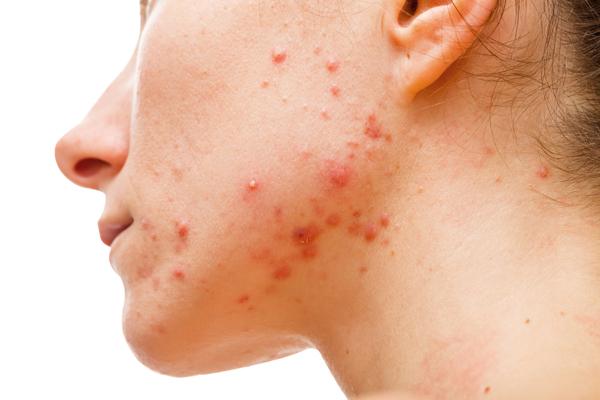 granos-acne-adolescente-juvenil-hormonas-hormones-dermatologia-dermatologo-dr-lopez-gil-teknon-barcelona-