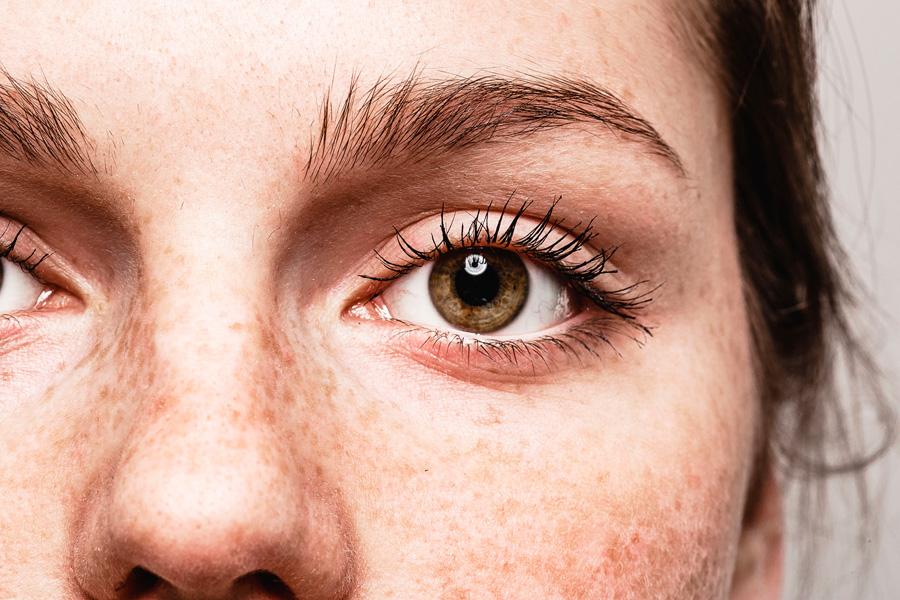 lunares-piel-revision-prevencion-cancer-piel-dermatoscopia-digital-estetica-dermatologia-dermatologo-dr-lopez-gil-teknon-barcelona