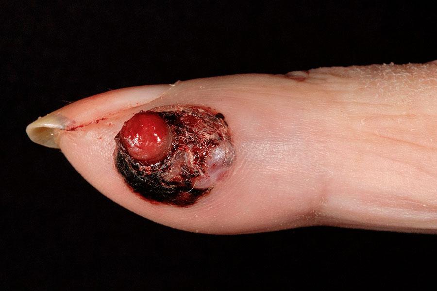 melanoma-cancer-piel-prevencion-dermatologia-clinica-evolucion-lunar-mancha-prueba