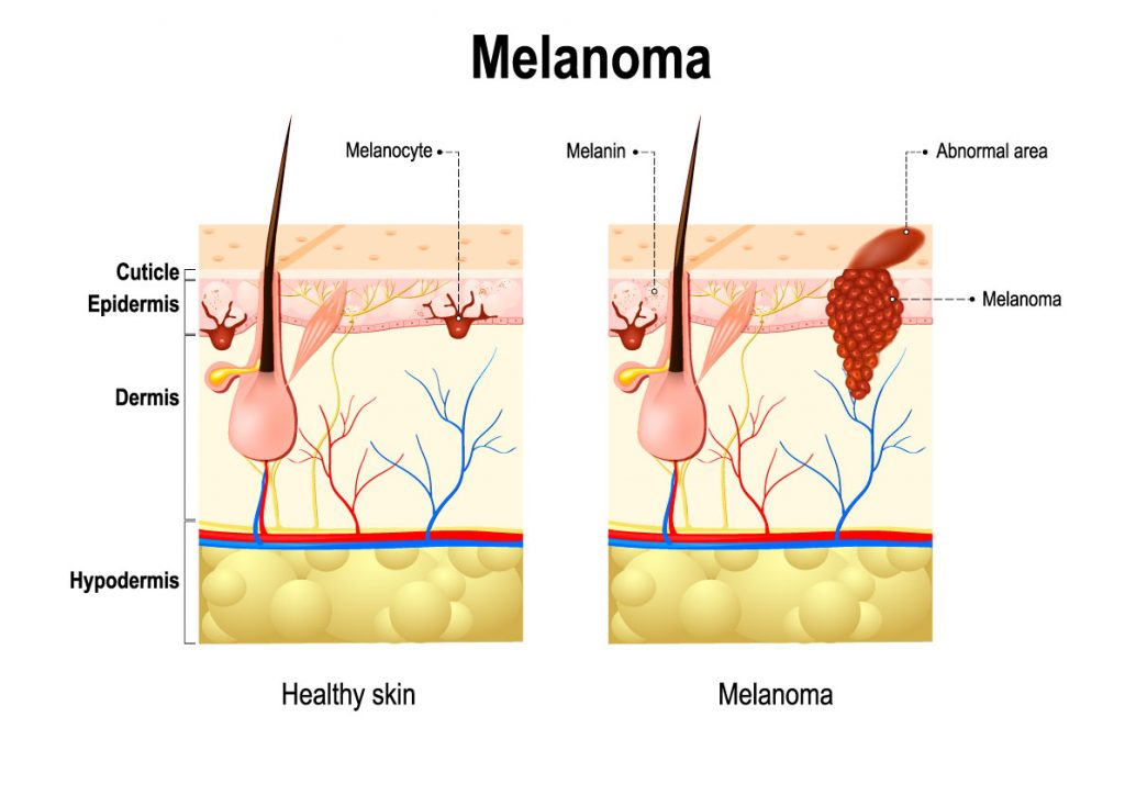 melanoma_cancer_pell_dermatologia_dermatologo_drlopezgil_dermandtek_teknon_barcelona_andorra