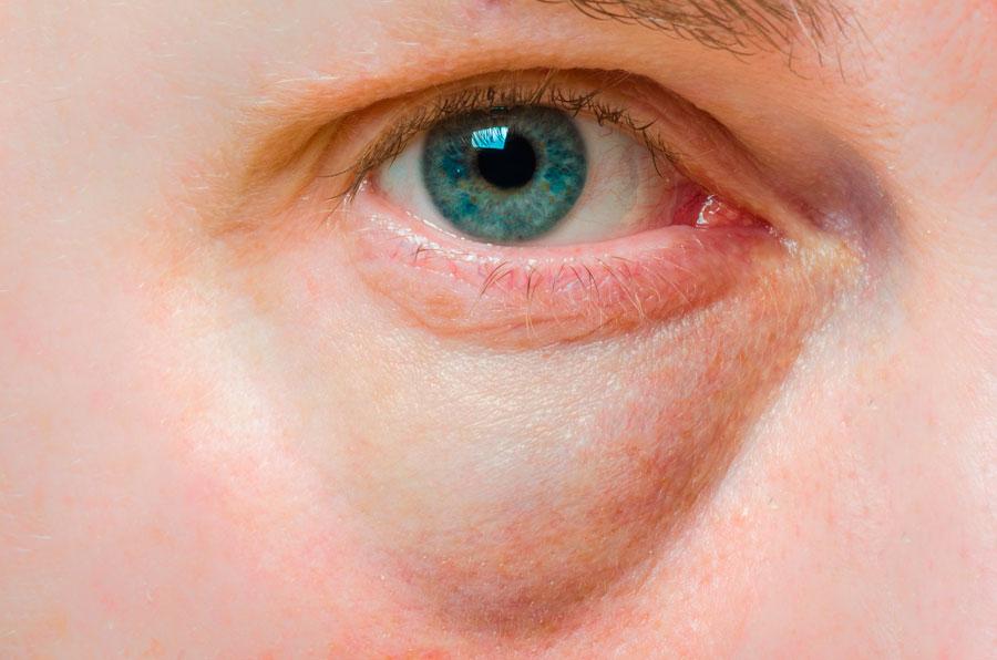 quitar-eliminar-borrar-bolsas-ojos-ojeras-tratamiento-estetica-acido-hialuronico-dermatologia-dermatologo-doctor-lopez-gil-clinica-teknon-barcelona