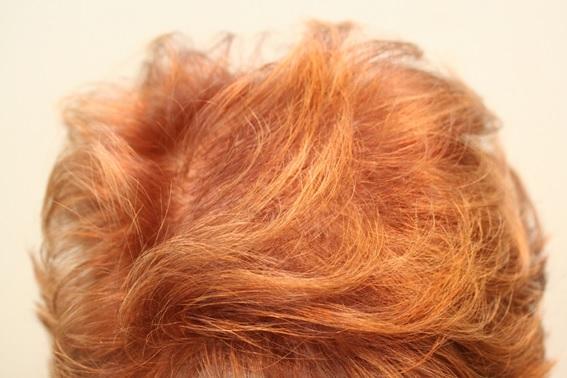 resultado-despues-tratamiento-parar-frenar-caida-del-pelo-alopecia-dr-lopez-gil-barcelona-clinica-barcelona-teknon