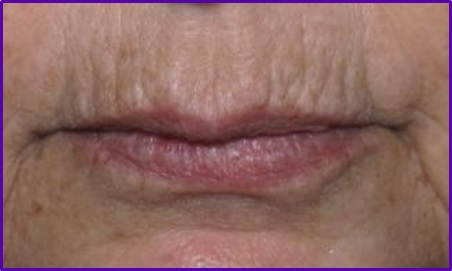 resultados-antes-codigo-barras-arrugas-labios-botox-acido-hialuronico-eliminar-arrugas-entrecejo-expresion-clinica-estetica-barcelona-dermatologo-dr-lopez-gil