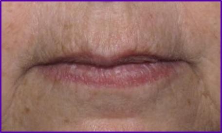 resultados-antes-despues-codigo-barras-arrugas-labios-botox-acido-hialuronico-eliminar-arrugas-entrecejo-expresion-clinica-estetica-barcelona-dermatologo-dr-lopez-gil.jpg