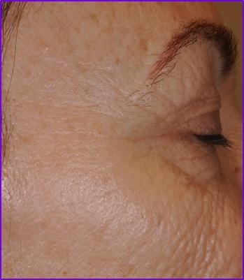 resultados-antes-despues-patas-de-gallo-arrugas-ojos-botox-acido-hialuronico-eliminar-arrugas-entrecejo-expresion-clinica-estetica-barcelona-dermatologo-dr-lopez-gil.jpg