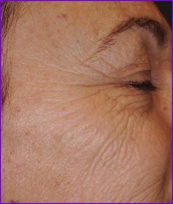 resultados-antes-patas-de-gallo-arrugas-ojos-botox-acido-hialuronico-eliminar-arrugas-entrecejo-expresion-clinica-estetica-barcelona-dermatologo-dr-lopez-gil