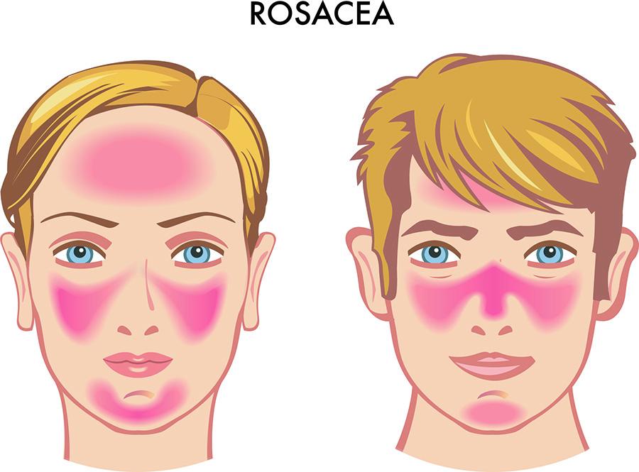 rosacea-cuperosis-rojez-venitas-rojas-pomulos-cara-tratamiento-laser-ellypse-nordlys-dermatologia-dermatologo-dr-lopez-gil-clinica-teknon-barcelona-