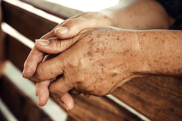 mancha-manchas-sol-como-quitarlas-revision-laser-maxg-sol-solares-piel-dermatologia-dermatologo-dr-lopez-gil-teknon-barcelona