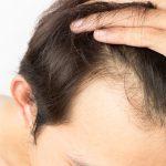 ¿Sabes cúales son los tratamientos más efectivos para combatir la alopecia masculina?