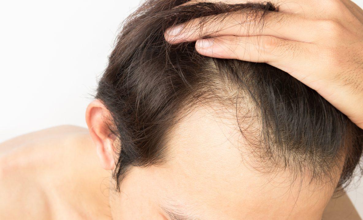 trasplante-pelo-cabello-pelo-a-pelo-implante-injerto-entradas-dermatologo-dr-lopez-gil-clinica-teknon-barcelona