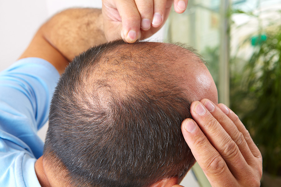 tratamiento-alopecia-androgenitica-caida-cabello-alopecia-doctor-cabello-especialista-clinica-capilar-barcelona-dermatologo-dr-lopez-gil-teknon