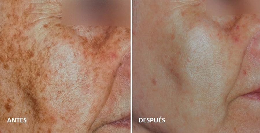 tratamiento-laser-manchas-sol-cara-solar-fotos-antes-despues-dermatologo-barcelona-nordlys-ellypse-dr-lopez-gil-Teknon