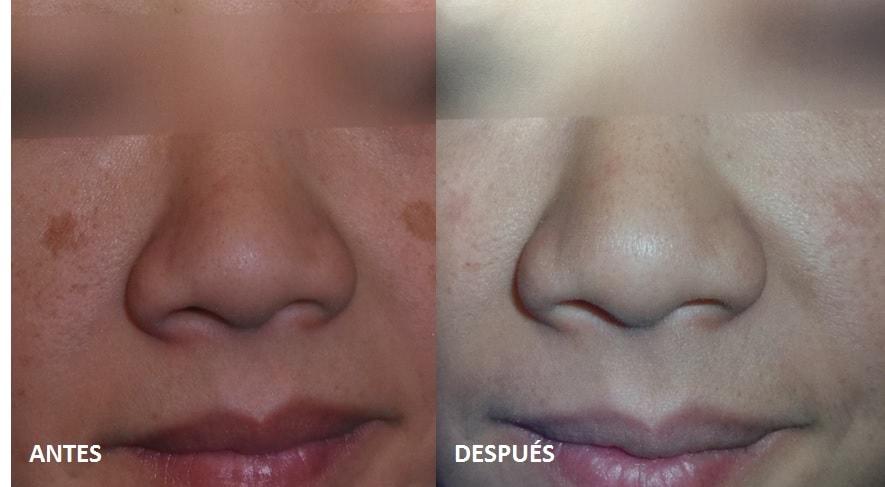 tratamiento-laser-manchas-sol-cara-solar-lentigos-fotos-antes-despues-dermatologo-barcelona-nordlys-ellipse-dr-lopez-gil-Teknon.