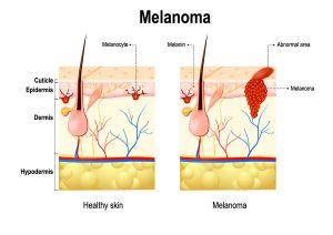 tratamiento-melanoma-cancer-piel-dermatologia-dermatologo-dr-lopez-gil-teknon-barcelona-