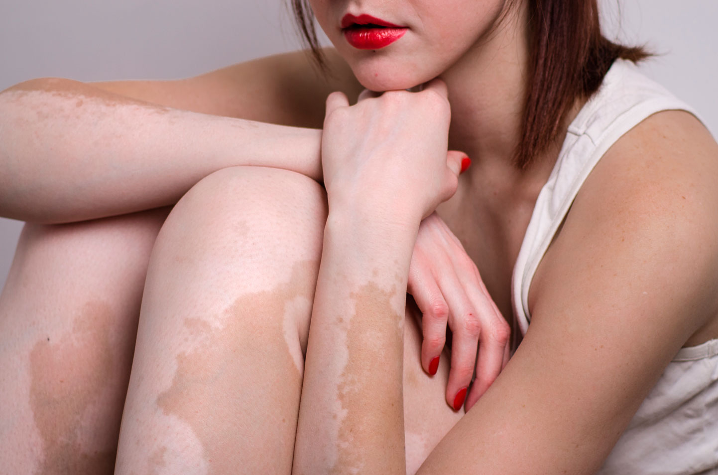 vitiligo-piel-sol-verano-manchas-despigmentacion-piel-puvaterapia-blancas-fototerapia-dermatologia-dermatologo-dr-lopez-gil-dermandtek-teknon-barcelona