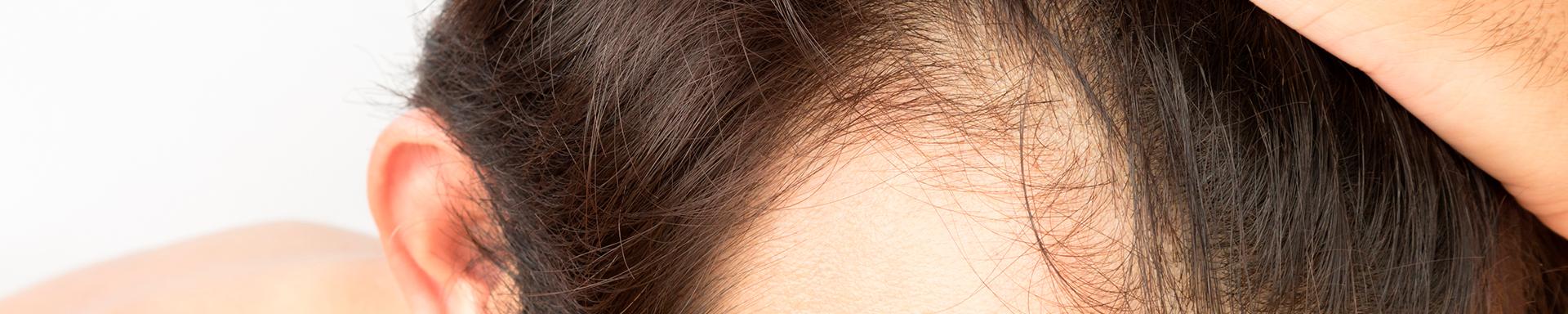 Caida-cabello-Trasplante-Capilar-barcelona-dermatologo-Caiguda-cabell-Trasplantament-capil·lar-dermatoleg-clinica-teknon