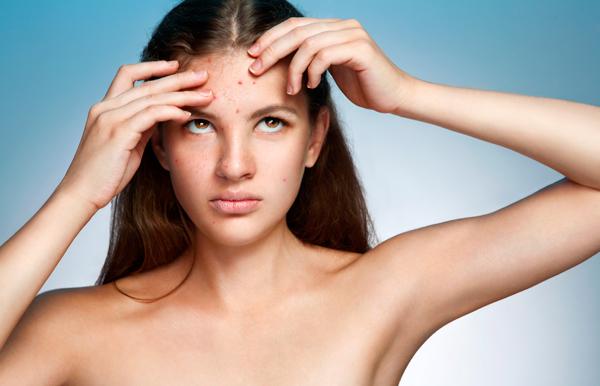 acne-marcas-cicatrices-dermatologia-dermatolego-dr-lopez-gil-consulta-barcelona