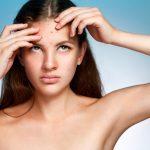 Consejos para eliminar el acné hormonal