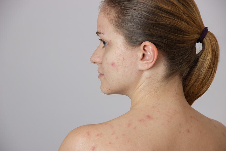 acne-quistico-conglabata-cara-hombros-mujeres-adulta-hormonas-tratamiento-acne-dermatologia-dermatologo-dr-lopez-gil-gil-clinica-teknon-barcelona