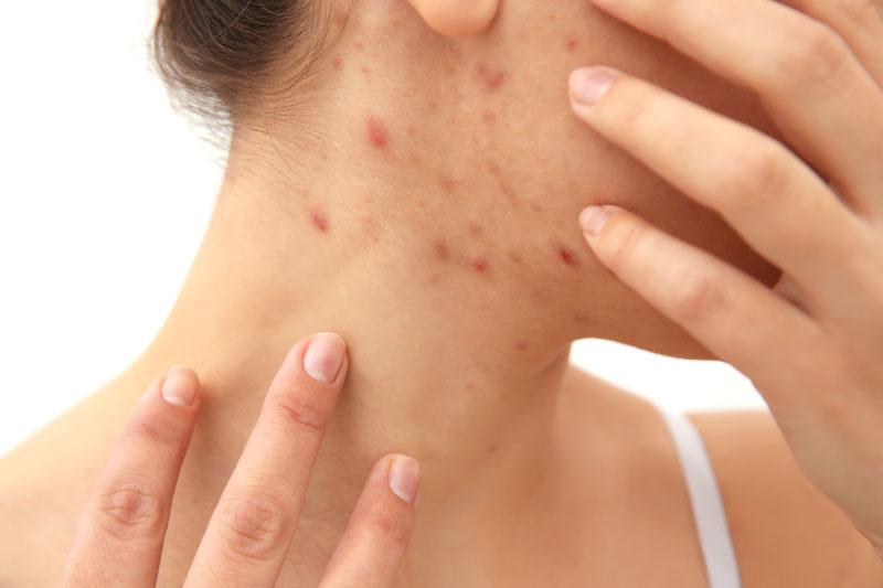 acne-tratamientos-laser-marcas-hormonas-dermatologia-dermatologo-dr-lopez-gil-teknon-barcelona-