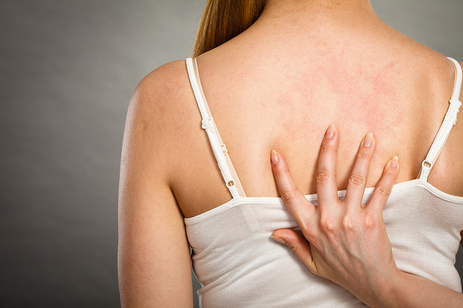 alergias-cutanea-reaccion-erupcion-picor-dermatologia-dermatologo-dr-lopez-gil-consulta-barcelona-