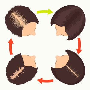 alopecia-androgenetica-femenina-escala-ludwig-evolucion-caida-cabello-dermatologia-dermatologo-especialista-dr-lopez-gil-teknon-barcelona-
