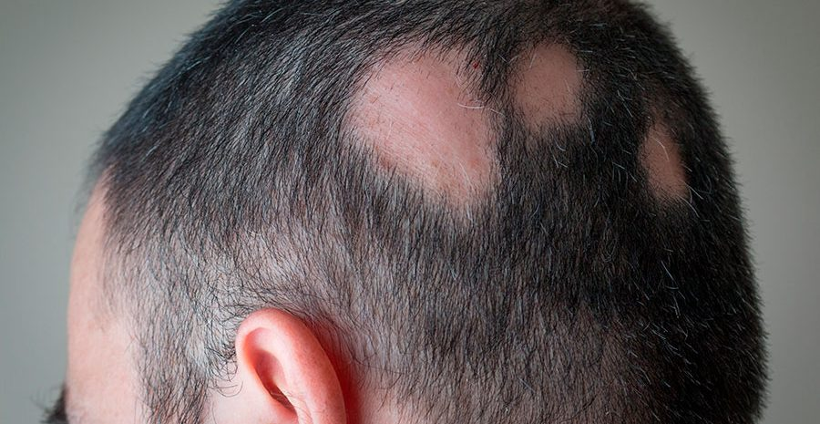 alopecia-areata-clapas-claros-cabello-caida-herencia-genetica-dermatologia-dermatologo-dr-lopez-gil-teknon-barcelona