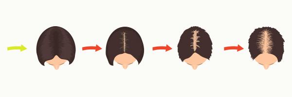alopecia-femenina-androgenetica-dermatologo-tratamiento-barcelona