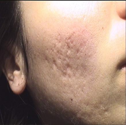 antes-del-resultados-tratamiento-laser-cicatrices-marcas-acne-dr-lopez-gil-clinica-barcelona-teknon