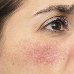 Cómo eliminar las venitas rojas o varices en la cara. Te contamos los mejores tratamientos para eliminarlas.