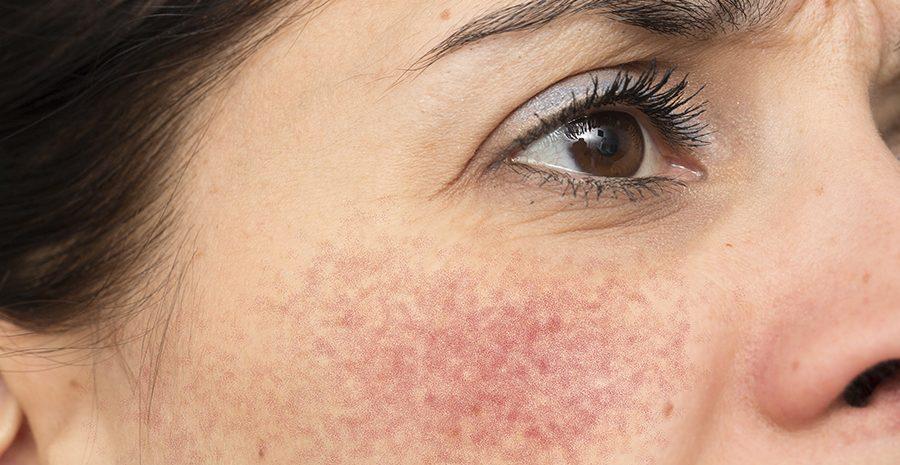 cuperosis-tratamiento-venas-vasculares-laser-sesiones-laser-no-ablativo-ipl-luz-pulsada-nordlys-dermatologo-dr-lopez-gil-teknon-barcelona