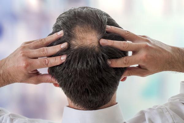 dermatologo-alopecia-areata-difusa-hombres-masculina-barcelona-caida-cabello-genetico-infitracion-inyeccion-prp-dermatologia-dr-lopez-gil-consulta-barcelona-clinica-teknon