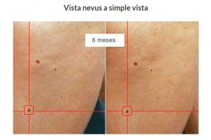 dermatologo-barcelona-tratamiento-prevencion-cancer-piel-dermatoscopia- digital-pecas-lunares-carcinoma-melanoma-teknon-dr-lopez-gil-Vista-nevus