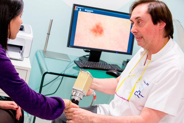 dermatologo-barcelona-tratamiento-prevencion-cancer-piel-dermatoscopia--digital-pecas-lunares-carcinoma-melanoma-teknon-dr-lopez-gil-dermoscopia