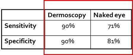 dermatoscopia-digital-deteccion-dr-lopez-gil-barcelona-dermatologia-skin-piel-teknon-min
